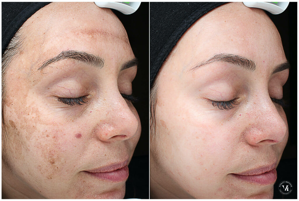 Melasma Treatment with Chemical Peels