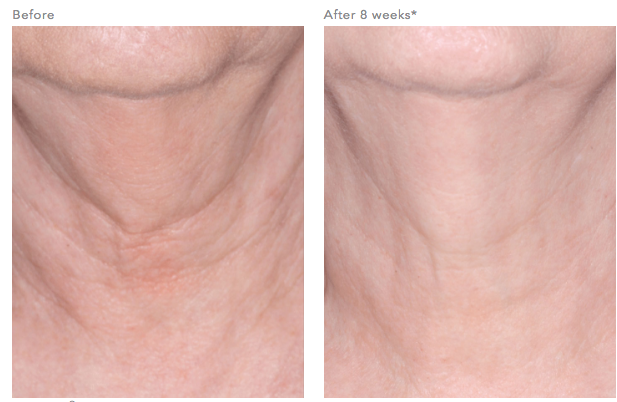ReVision Nectifirm® Before and After