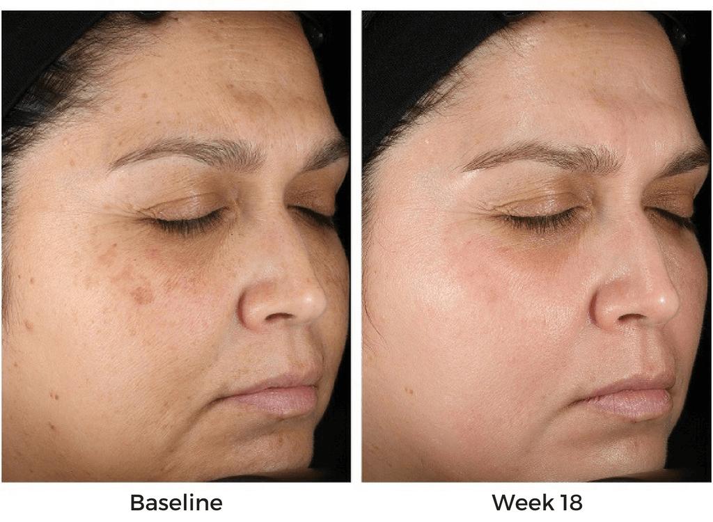 Obagi Nu-Derm System Before & After