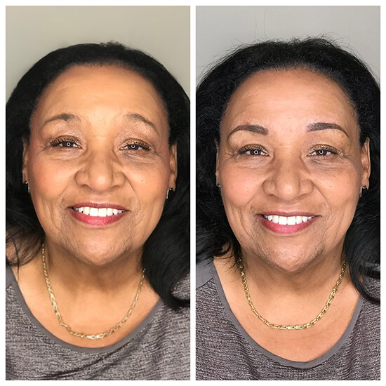 Permanent Makeup Before and After