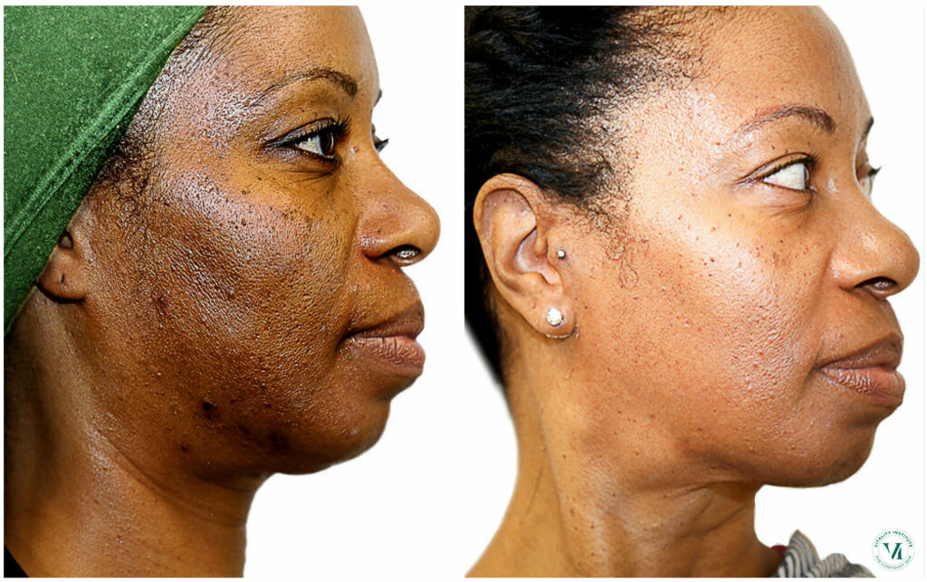 Pigmentation Treatment with Chemical Peels