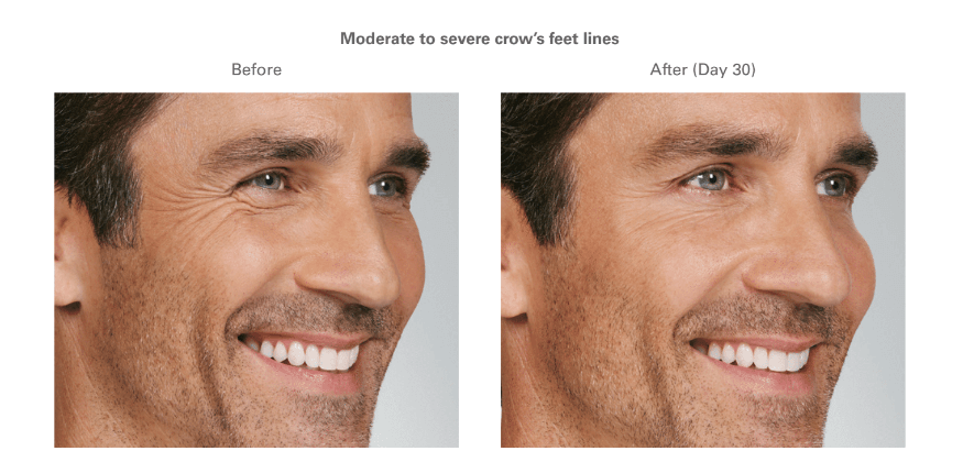 A man with Moderate Crows Feet with Botox