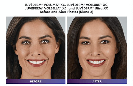 Before and After of woman with juvederm treatment