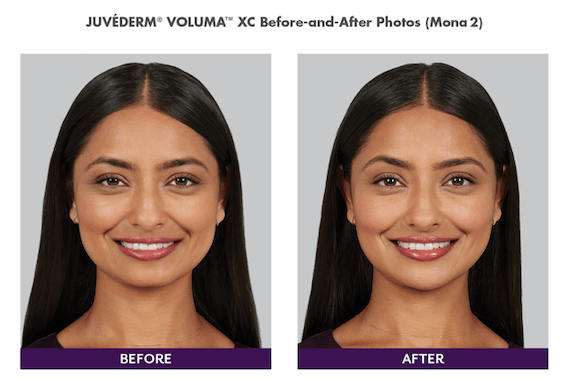 woman with juvederm treatment