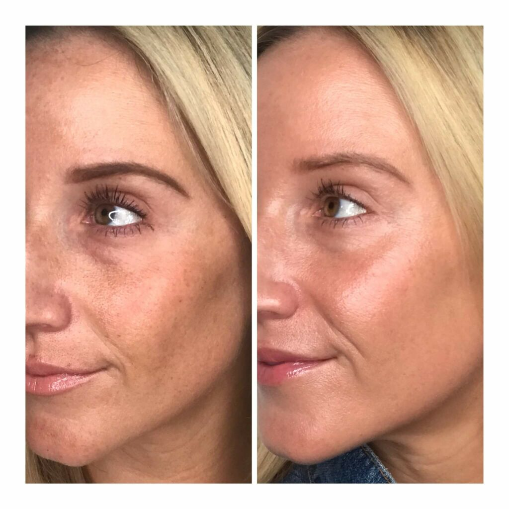 Halo Treatment Before and After