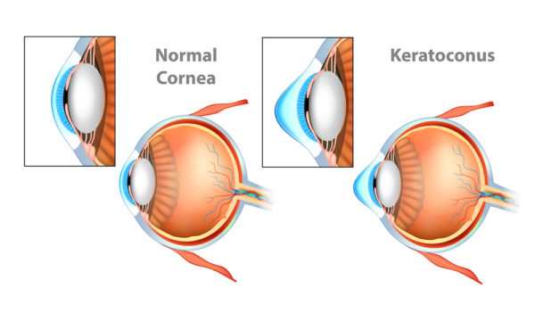 Normal Cornea vs Cornea with Keratoconus