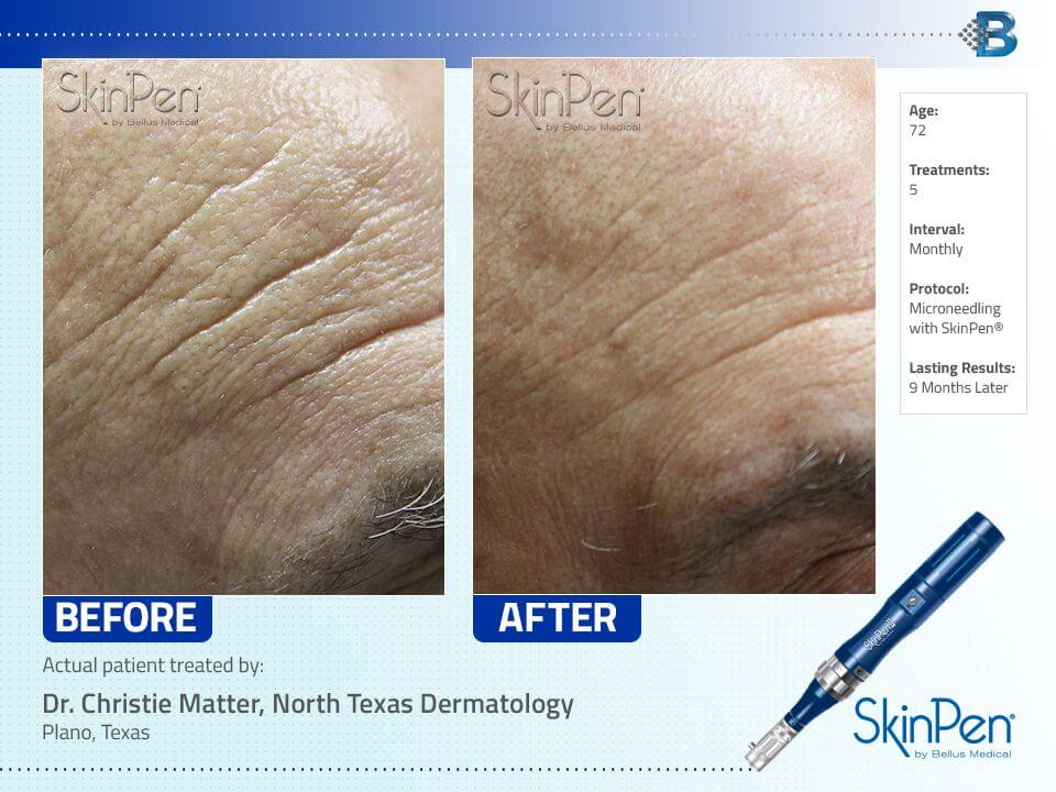 SkinPen Microneedling Before and After - Forehead