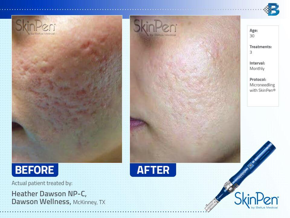 SkinPen Microneedling Before and After - Cheek